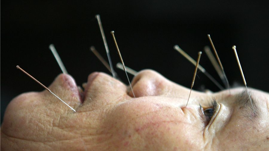 A patient receives acupuncture to treat facial numbness at a clinic of traditional Chinese medicine in Southwest China's Chongqing municipality. Chinese acupuncture was added to the United Nations World Intangible Heritage list in 2010.
