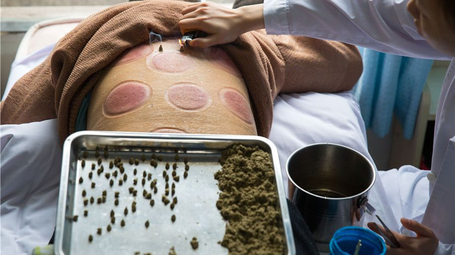 A patient receives moxibustion therapy at a traditional Chinese medicine hospital in Southwest China's Chongqing municipality.