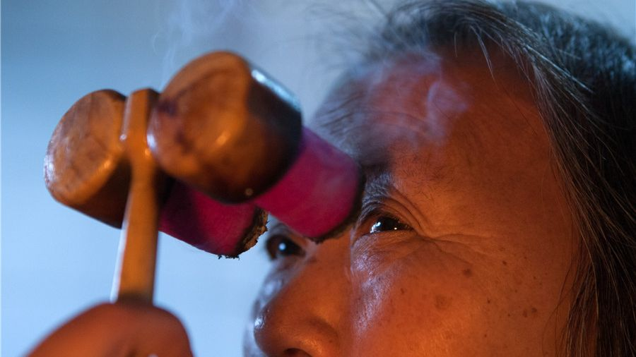 An elderly woman receives acupuncture to treat his eye disease at a traditional Chinese medicine research institute in Southwest China's Chongqing municipality.