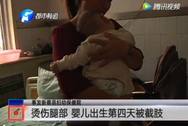 Four-day-old Chinese boy has leg amputated due to hair dryer